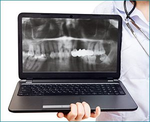 digital xrays - visiting dentist